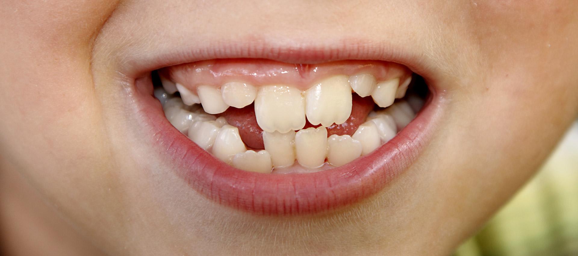 Was verursacht Zahnfehlstellungen und krumme Zähne?