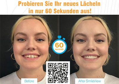 Invsialign SmileView