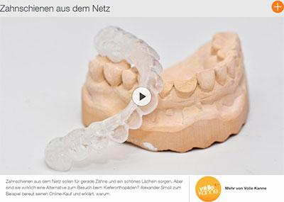 Was Sie über Zahnschienen aus dem Netz wissen sollten: